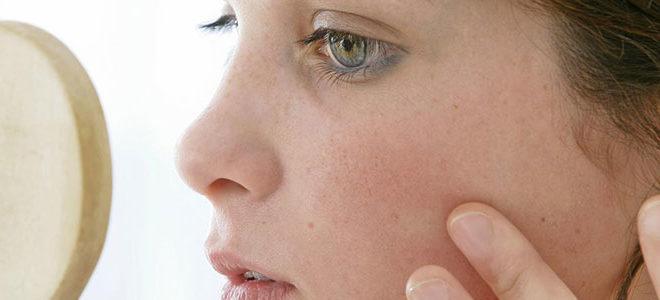 Псориаз у детей фото начальной стадии симптомы и лечение