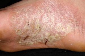 Причины признаки и лечение пустулезного псориаза