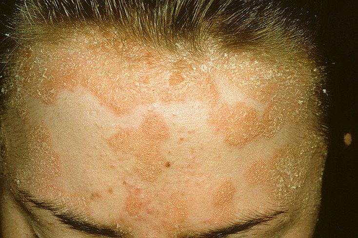 Себорейный псориаз на лице предпосылки диагностика и лечение