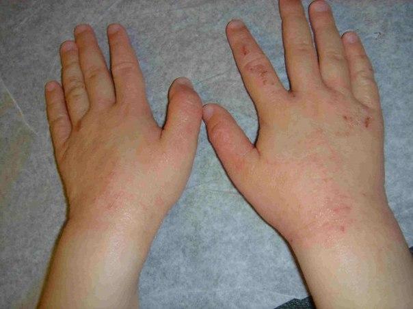 Эффективные средства от псориаза на теле
