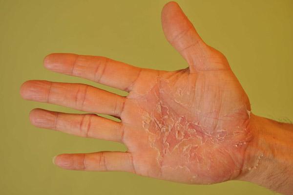 Начальная стадия псориаза фото и признаки болезни