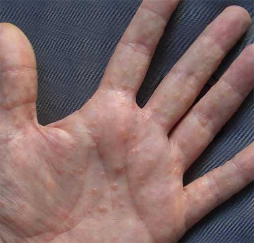 АСД 2 Лечение Псориаза