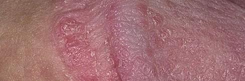 На половом члене красные пятна фото как лечить