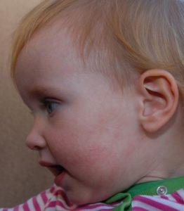 псориаз у детей фото