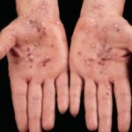 пустулезный псориаз (экссудативный)