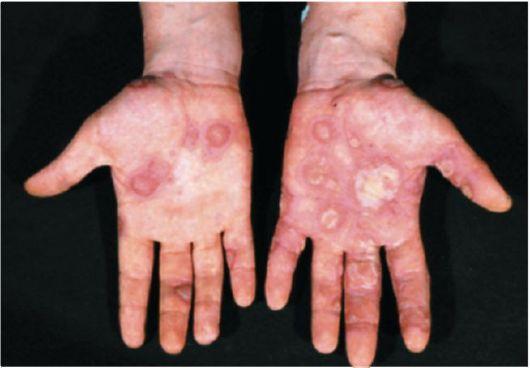 lechenie-psoriaza-metodom-krioterapii