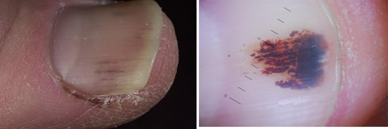 Псориаз ногтей фото симптомы и лечение