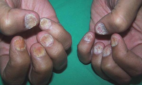 псориаз ногтей Трахионихия