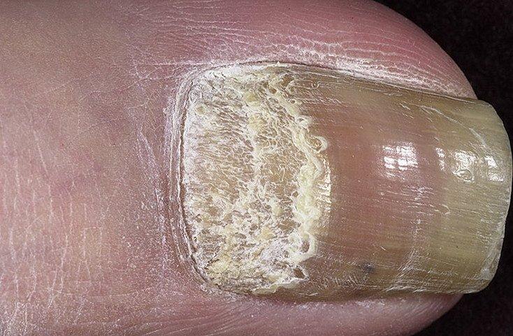 Как лечить псориаз на ногах фото начальная стадия средства