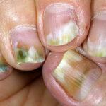 псориаз ногтей фото