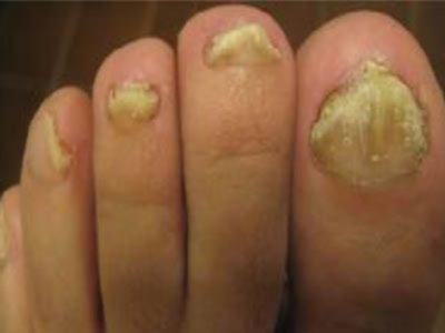 Лучшее средство от псориаза ногтей