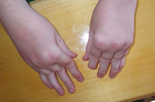 Псориаз фото симптомы лечение псориаза