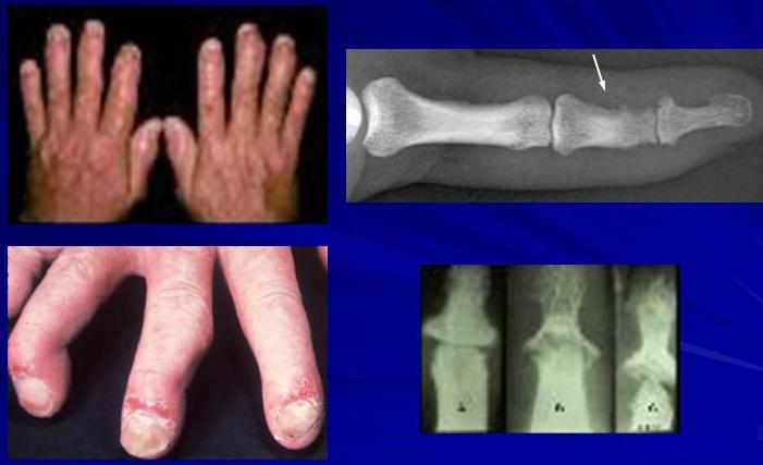 Псориаз на пальцах рук симптомы и лечение псориаза конечностей