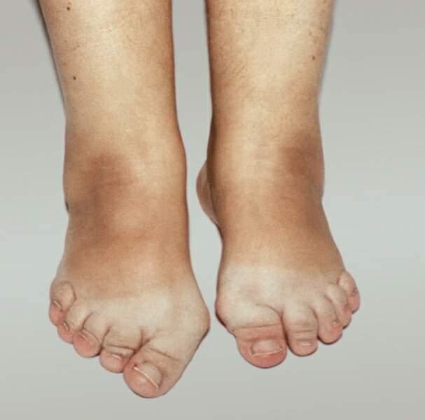 Псориаз суставов причины симптомы с фото диагностика и лечение